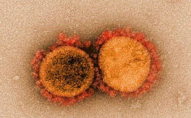 SARS-CoV-2 , COVID-19