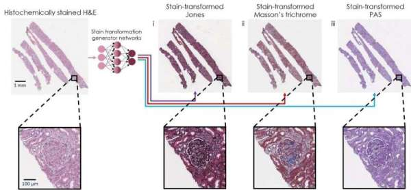 Virtual transformation and re-staining of one tissue biopsy stain (H&E) into three special stains using deep neural networks. Credit: Ozcan Lab @ UCLA