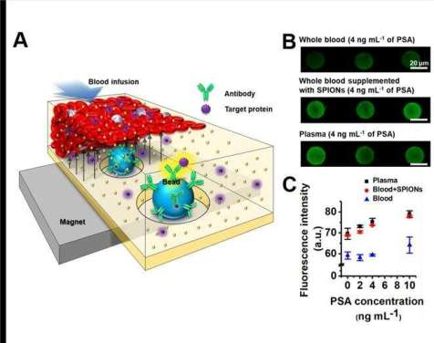 New Study Unveils Novel Technology for Plasma Separation Using Magnets