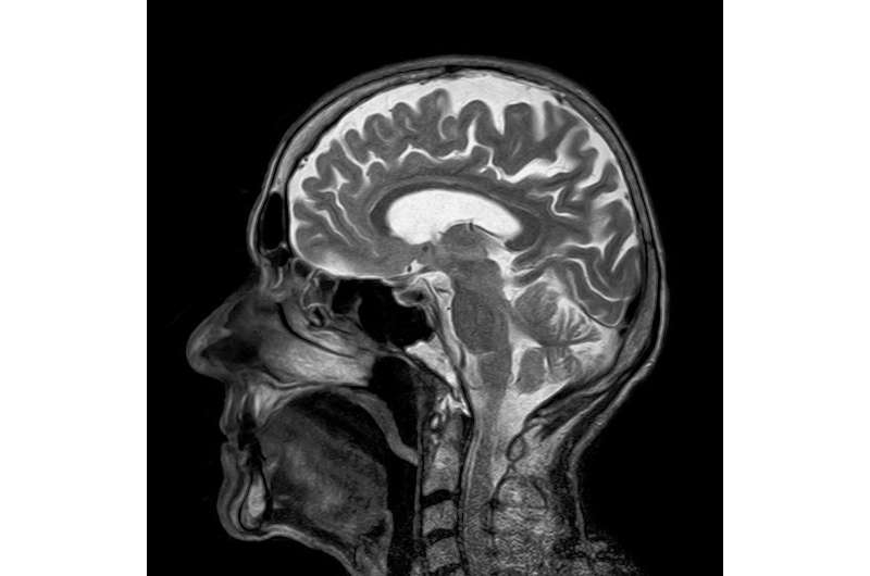 Stroke of luck: Scientists discover target for stroke therapy in blood-brain barrier