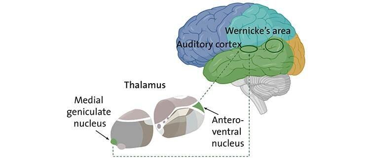 Schizophrenia When The Thalamus Misleads The Ear