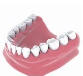 denture implants Bakersfield, CA