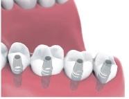 multiple teeth implants Bakersfield, CA