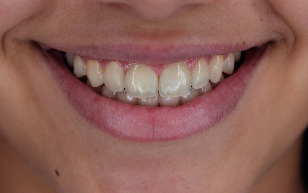 What is Expected from You during Orthodontic Treatment