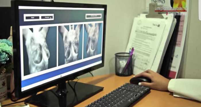 El equipo Thermy detecta cáncer de mama en etapas tempranas mediante el análisis por inteligencia artificial de la temperatura corporaldia