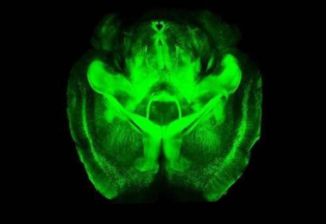 Oração traz curas quando o cérebro se comunica com Deus, aponta médico cristão