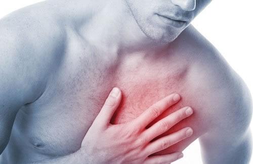 Sintomas de infarto: dor no peito não é único sinal