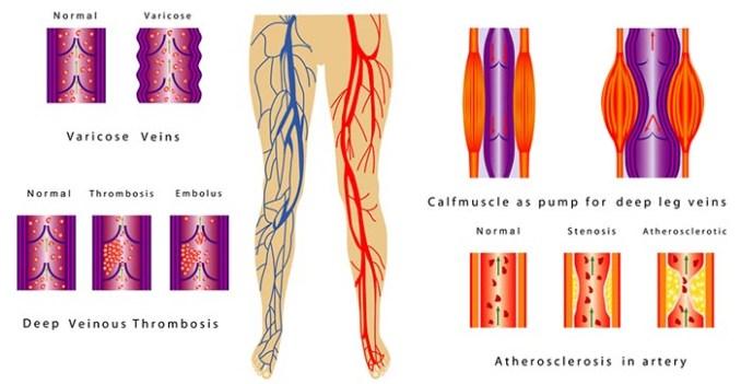 Varicose veins chart