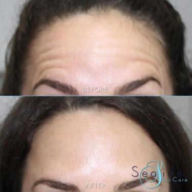 Botox-forehead-2