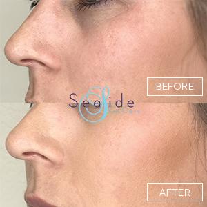 Cheek Filler Before & After