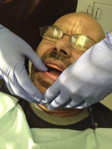 Now we make the lower denture so it works against the upper denture.