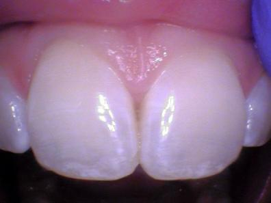 Teeth #'s 8 and 9 - Examples of teeth that have had fluoride. Frosty white appearance.