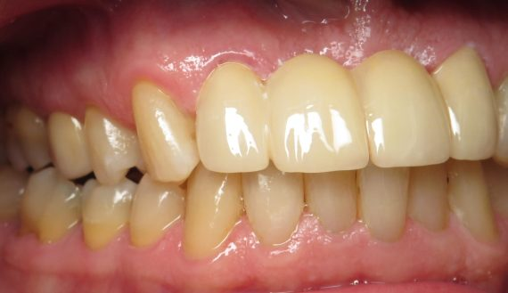 Bill Curtis's new smile makeover at Seasons of Smiles Dental