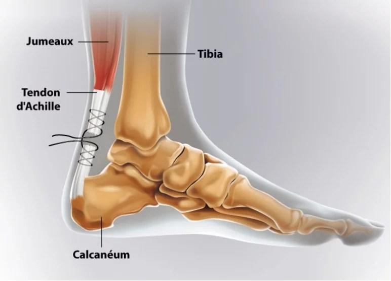 Opération du tendon d'Achille