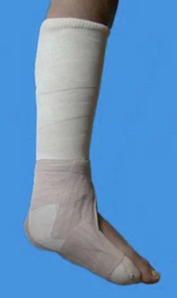 Plâtre avec pied en équin