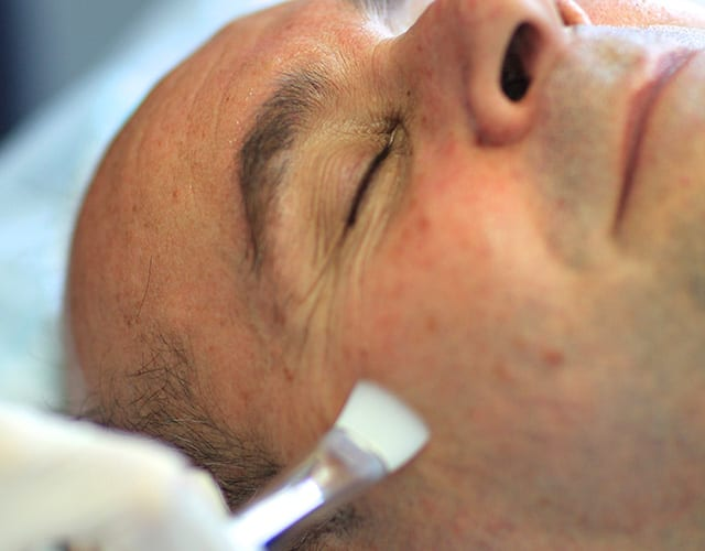 second skin dermatology peel