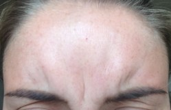 Botox - Frown Before