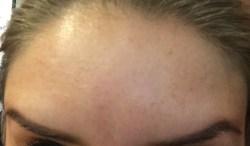 Botox - Raised 14 Days Later