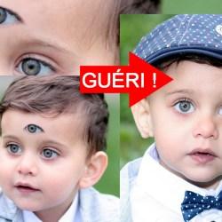 Bonne nouvelle : Nico, l'enfant atteint de triplophtalmopathie, a été opéré et son troisième œil a été retiré