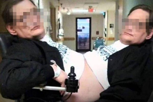 Des jumeaux siamois se livrent une bataille juridique pour le droit de se masturber
