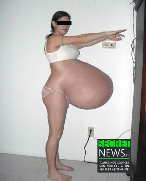 femme-enceinte-plusieurs-mois-grosesse-enorme-3 Irlande : une femme enceinte depuis 17 mois attend que son fils accepte de naître
