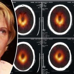 La science s'excuse : le trou noir n'était que le scanner cérébral de Nadine Morano