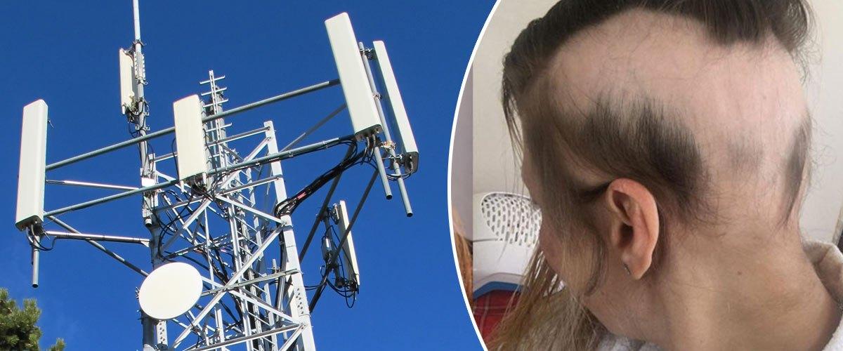 Les antennes 5G rendent chauve et homosexuel