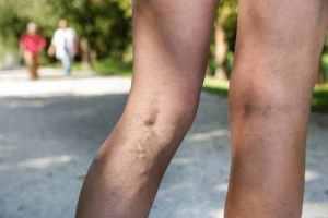 Чем опасна варикозная болезнь