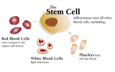 Stem Cells from cord blood.