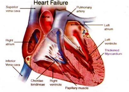 Obat Tradisional Jantung Bocor Pada Anak