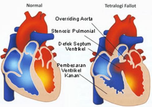 Obat Jantung Bocor Bawaan