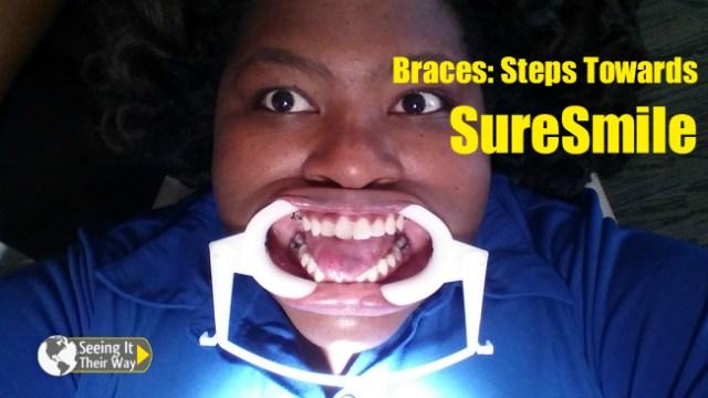 Adult Braces SureSmile