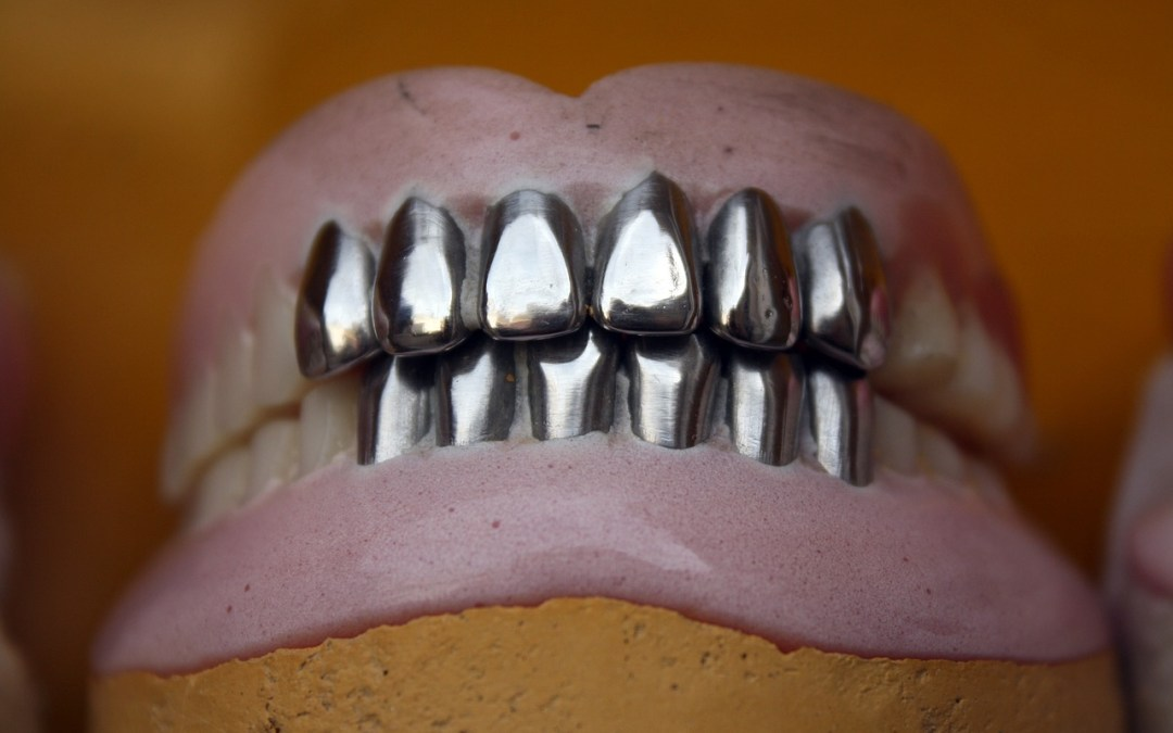 Plombages dentaires en amalgame
