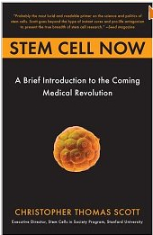 Exploring Stem Cell Therapy for Cerebral Palsy: A Costly