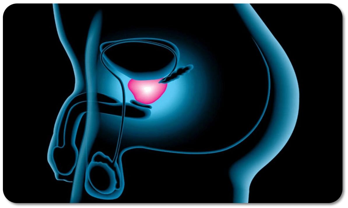 ¿Puedes contraer cáncer de próstata por ingestión de esperma?