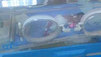 Photo of ولادة قيصرية.. سيدة تضع 3 توائم بمستشفى كفر الشيخ الجامعي