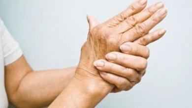 Photo of مضاعفات غير متوقعة لـ التهاب المفاصل الروماتويدي