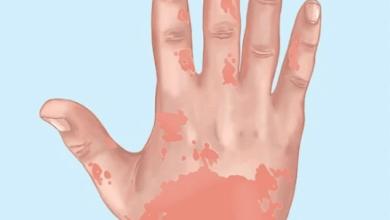Photo of علامات تحذيرية أن جسمك مليء بالسموم