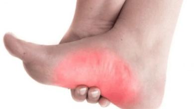 Photo of بدون أدوية.. 3 طرق طبيعية لعلاج آلام القدم