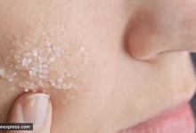 Photo of فوائد مذهلة عند وضع الملح لعلاج مشاكل البشرة