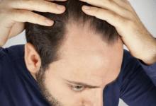 Photo of أفضل علاج لتساقط الشعر عند الرجال