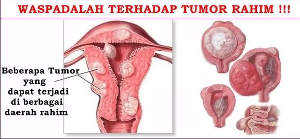 Kejadian Lagi Setelah Operasi Tumor Rahim Tumbuh Lagi Di Tempat Semula