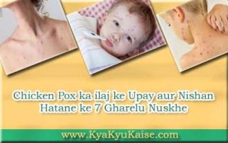 Chicken pox ka ilaj in hindi, Chicken pox ke nishan ka ilaj
