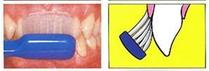 Sikat Gigi versus Dental Flossing (2/6)