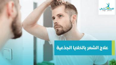 علاج الشعر بالخلايا الجذعية