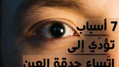 اتساع حدقة العين