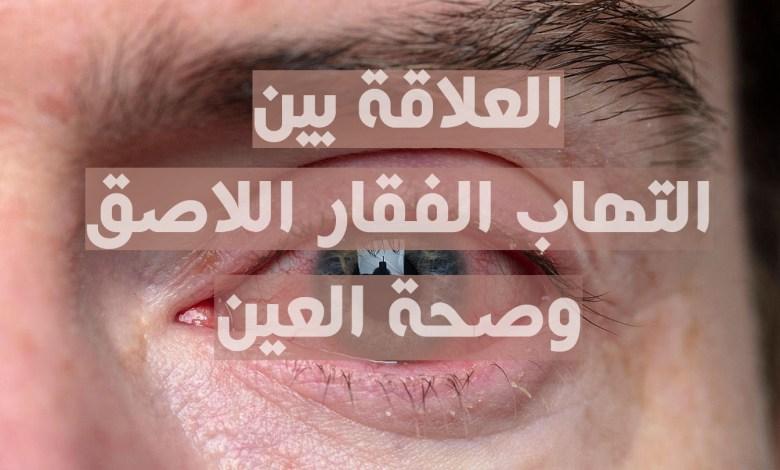 التهاب الفقار اللاصق و صحة العين