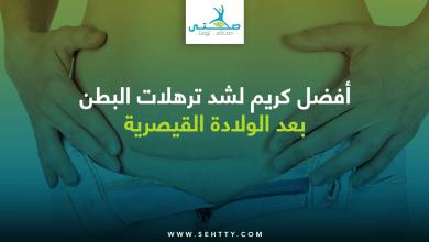 كريم لشد ترهلات البطن بعد الولادة القيصرية