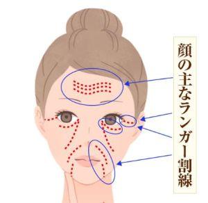 顔の主なランガー割線があると老ける