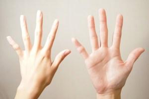 指の形が変形した女性の手